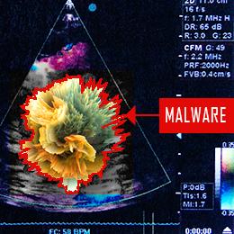 ultrasoundmalware_blog_260x260.jpg
