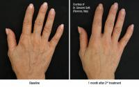 before-after_hands.jpg